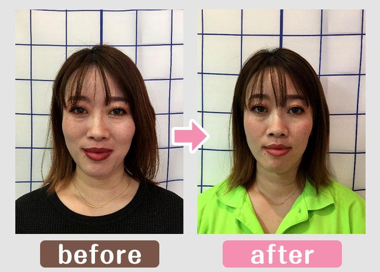 小顔顔の変化画像